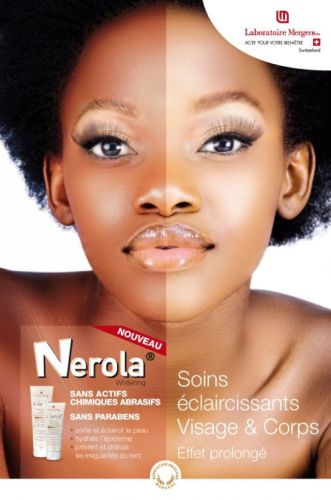 What it means for Rwanda to have banned skin bleaching creams