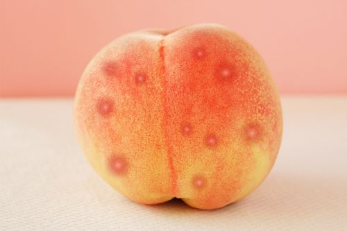 Random Q: How Do I Get Rid of Acne. on My Butt?