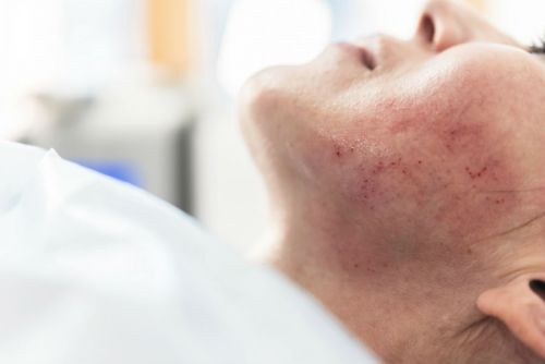 Two Cases Of HIV Have Been Linked To The Trendy Vampire Facial