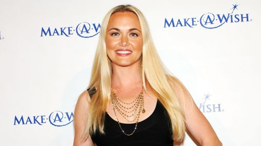 Vanessa Trump's Face Transformation Could Be Due to Fillers and a Nose Job