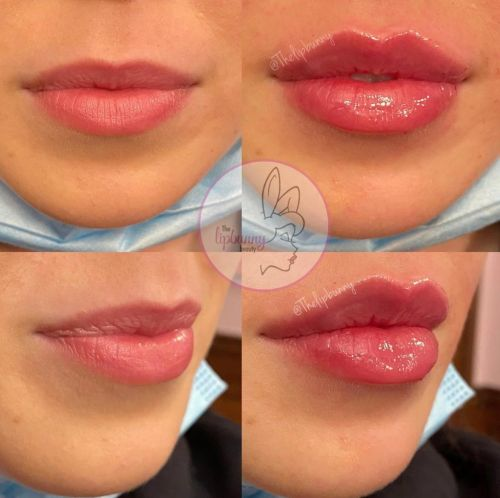 The Inspiring Story of America's Top Master Injector - The Lip Bunny