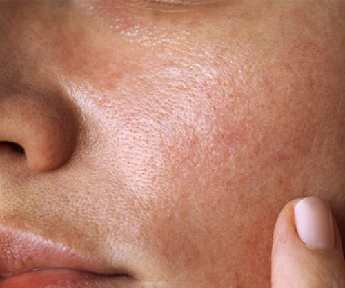 How To Have Less Oily Skin In 7 days