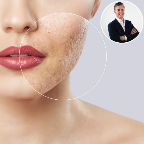 Skin Check-In With Dr. Will: Top Dermatologists Reveal How to Avoid Acne Scarring