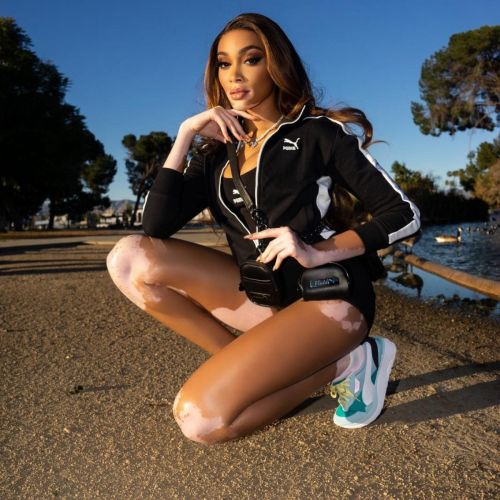 Winnie Harlow Stars In New Sneaker Campaign With PUMA